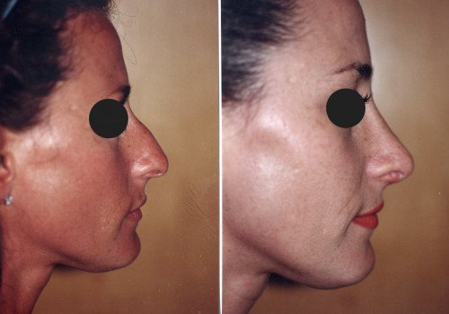 Before and After (Dr. Karel Taams)