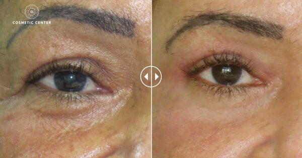 Under eyelid correction
