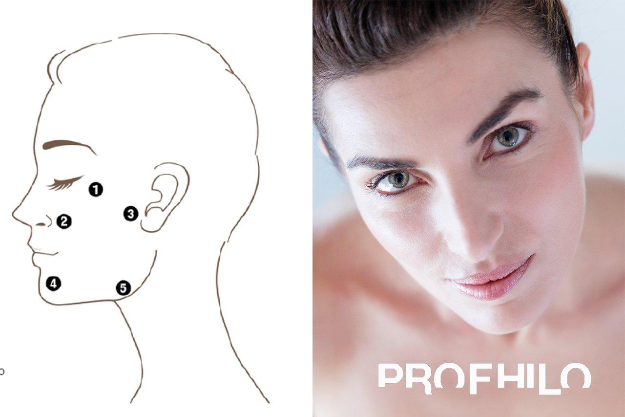 Verbeter je huid met Profhilo
